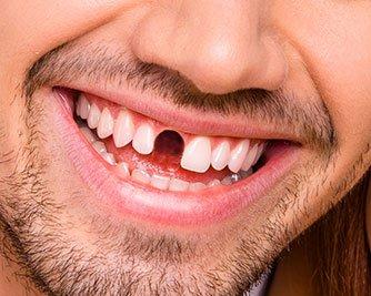 Something Missing Dental Marketing